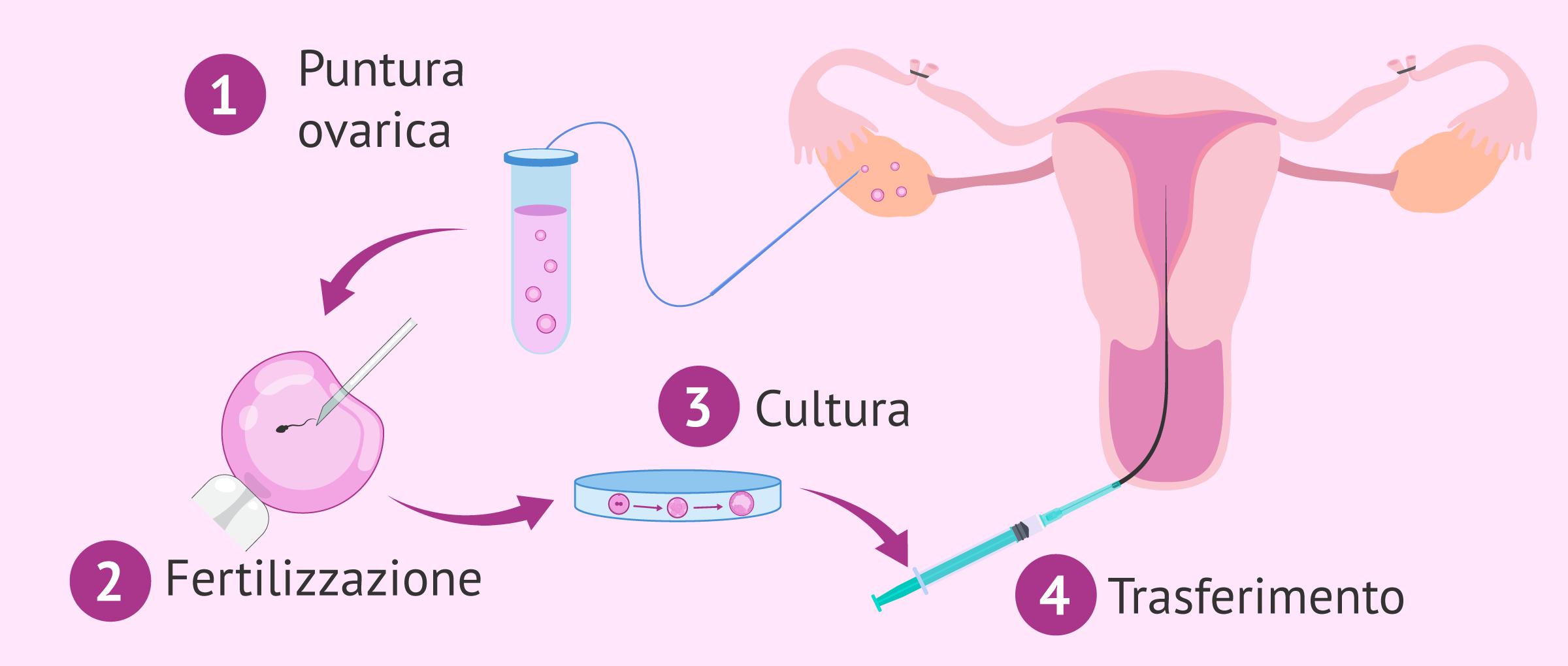 Imagen: Restare incinta dopo una legatura delle trombe