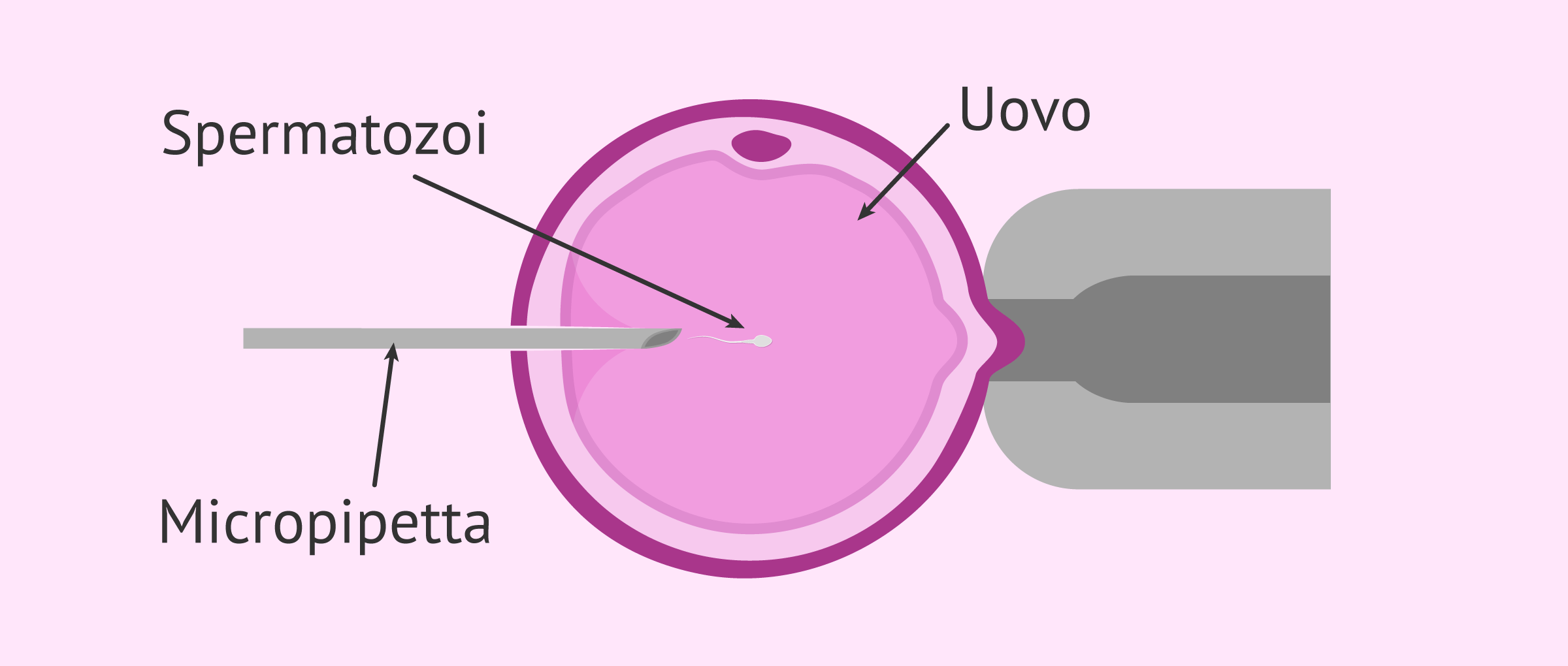 Iniezione Intracitoplasmatica degli Spermatozoi (ICSI)