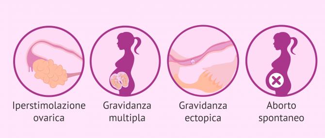 Imagen: Svantaggi dell'inseminazione artificiale: gestazione multipla.
