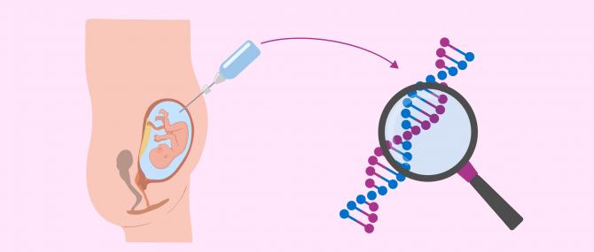 Imagen: Cos'è l'amniocentesi?