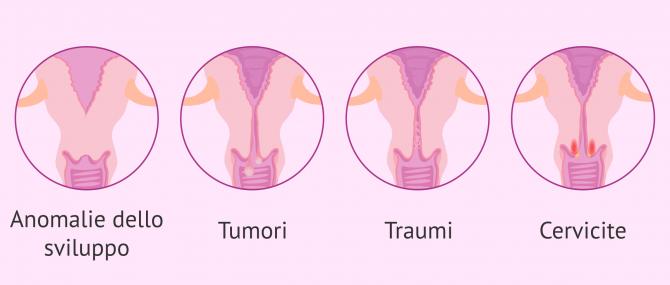 Sterilità femminile dovuta ad un fattore cervicale