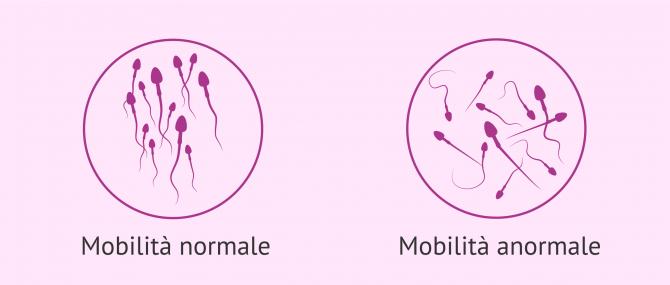 Imagen: Prezzo dell'iniezione intracitoplasmatica dello spermatozoo