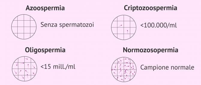 Imagen: Tuboli seminiferi nell'azoospermia