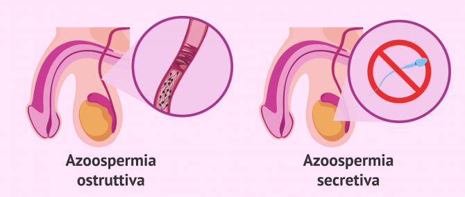 Imagen: Tipi di azoospermia