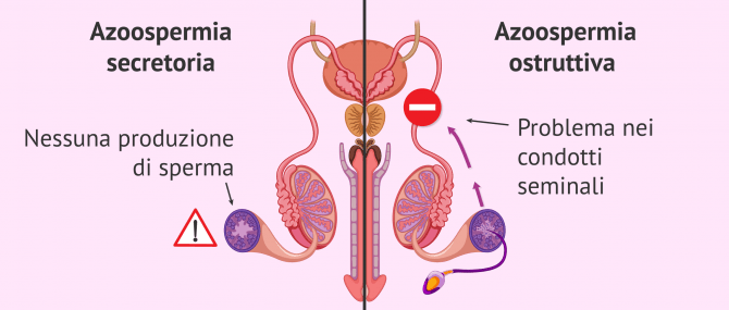 Imagen: Azoospermia ostruttiva immagine