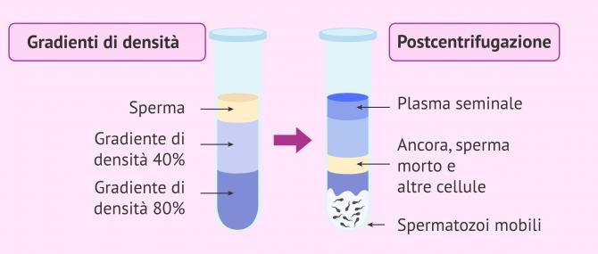 Imagen: Capacitazione dello sperma per gradienti di densità