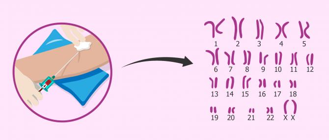 Imagen: Cariotipo per diagnosticare la sterilità di origine cromosomica