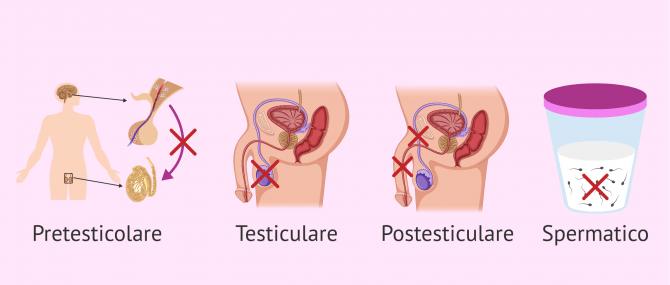 Cosa causa la sterilità maschile? – Sintomi e soluzioni