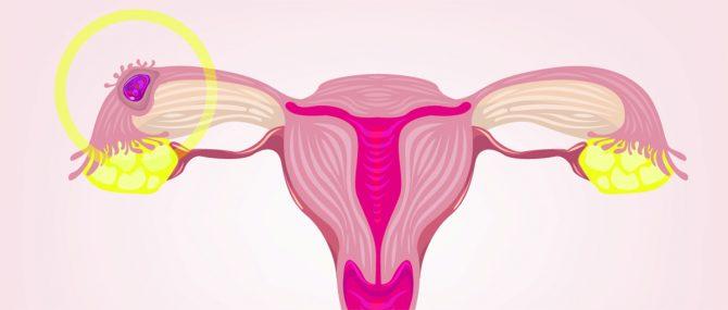 Cause della gravidanza ectopica