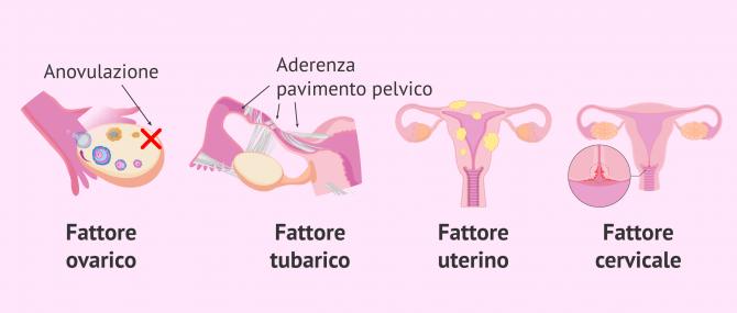 Imagen: L'oligoastenoteratozoospermiae la fecondazione in vitro