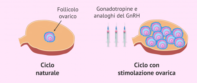 Imagen: Ciclo naturale e ciclo con stimolazione ovarica controllata