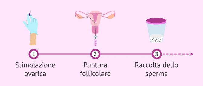Imagen: Coltura embrionale en IVF