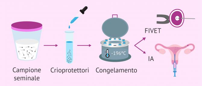 Imagen: Processo di congelamento dello sperma