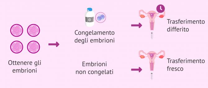 Trasferimento di embrioni: quando e come si fa