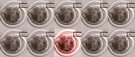 Cos'è il time-lapse? – Miglioramento dello sviluppo embrionale in vitro