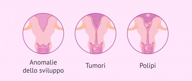 Imagen: Esistono cause comuni alle donne e agli uomini, e altre che dipendono dal sesso.