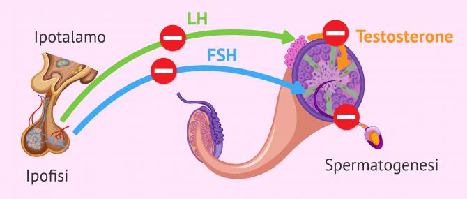Imagen: Fattore endocrino della sterilità maschile