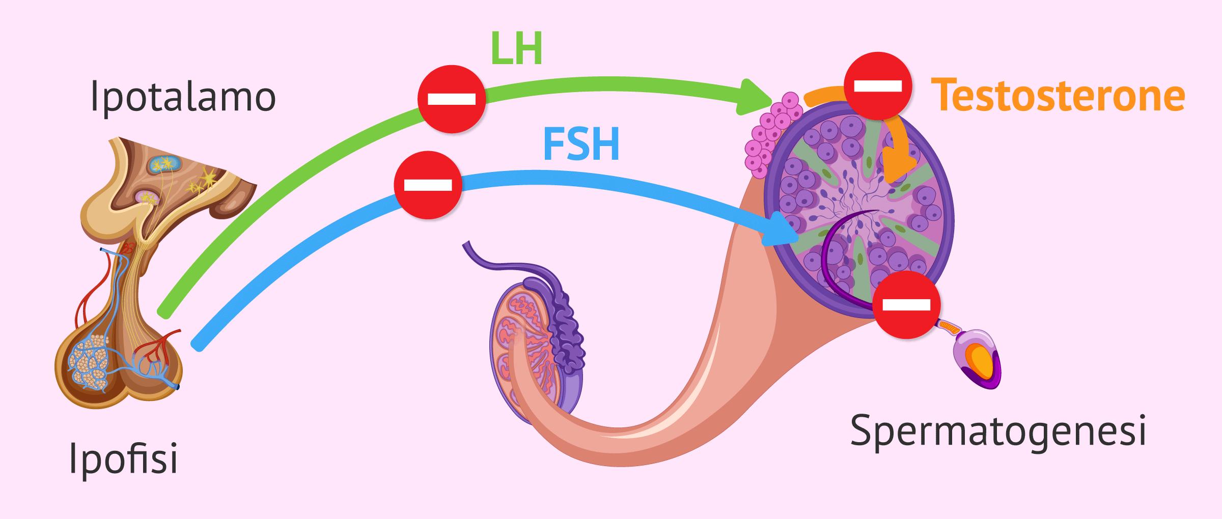 Fattore endocrino della sterilità maschile