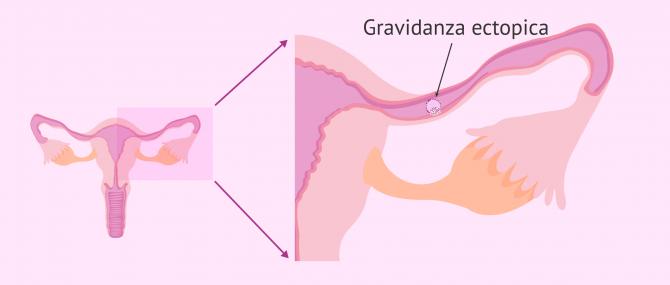 Imagen: Gravidanza ectopica nell'inseminazione artificiale