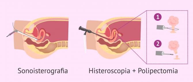 Imagen: Diagnosi e trattamento dei polipi endometriali