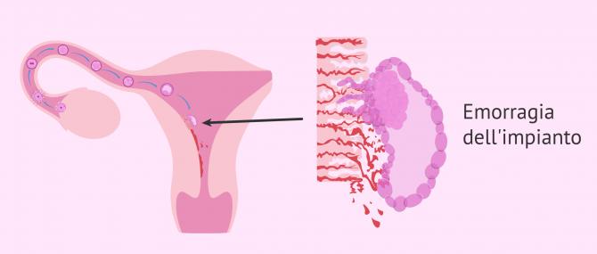 Imagen: Sviluppo di embrioni e emorragia da impianto