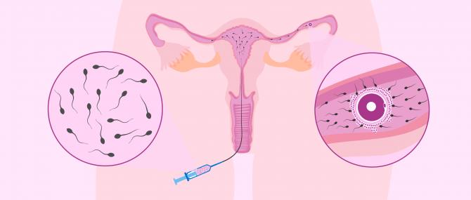 Imagen: Inseminazione artificiale intrauterina