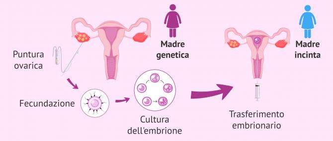 Imagen: Avere un bambino con sperma di un donatore attraverso il metodo ROPA