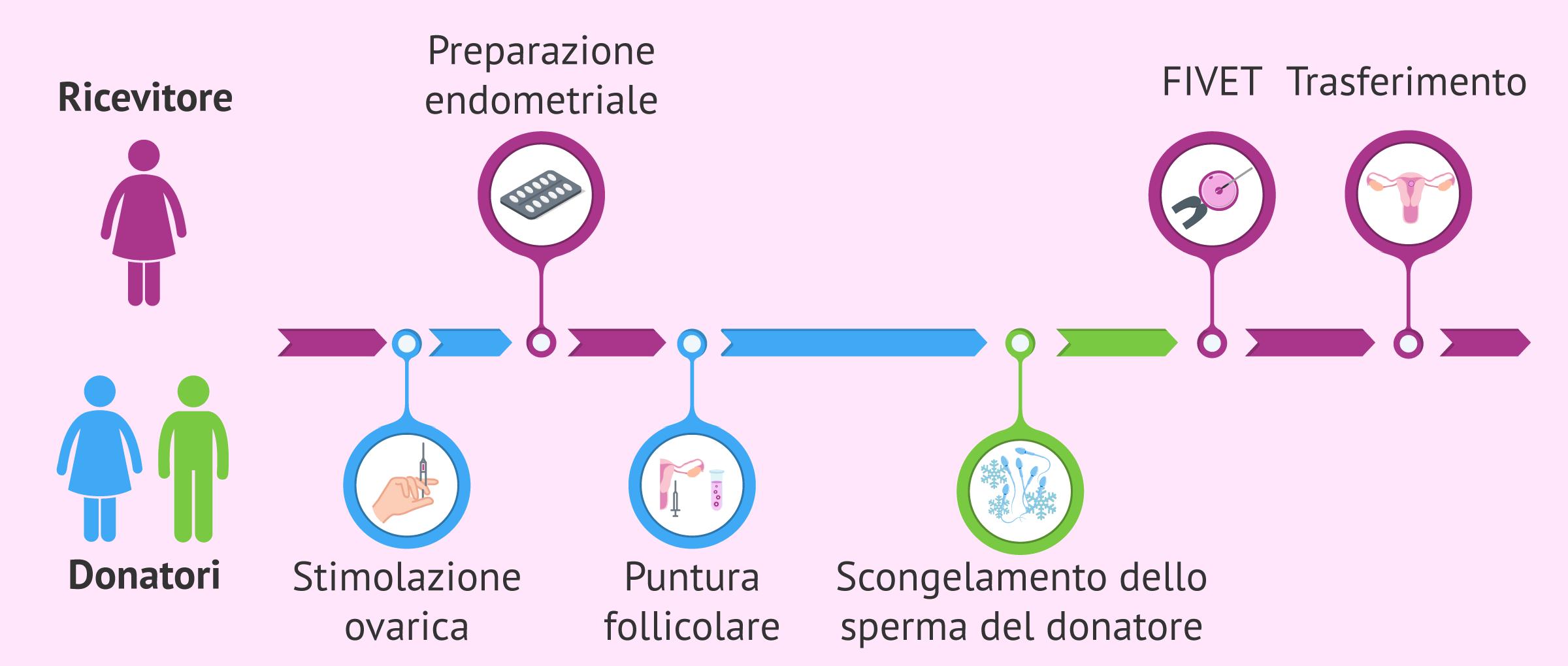 FIVET con donazione di ovuli e sperma: fasi del trattamento e prezzo