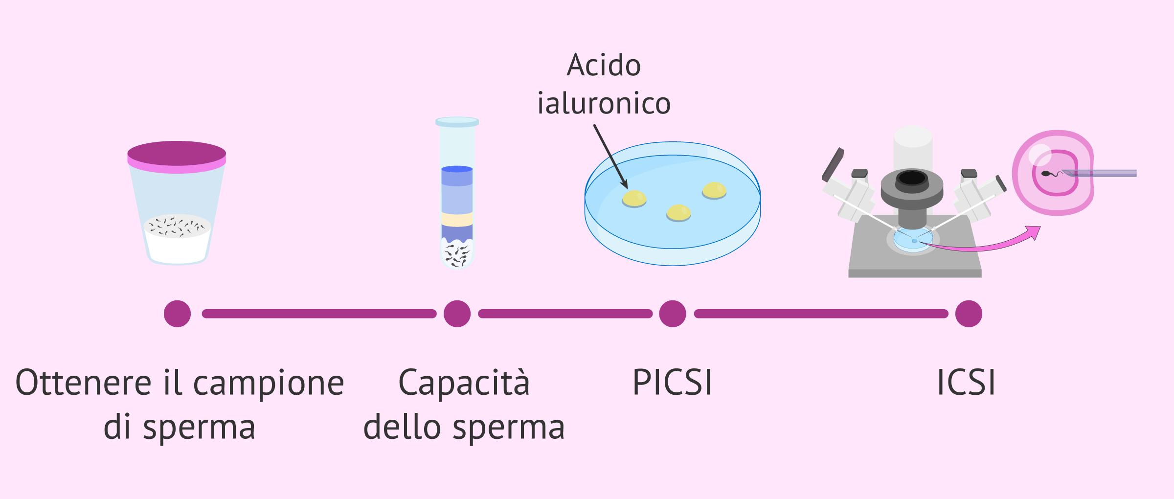 Microiniezione fisiologica o PICSI: indicazioni e vantaggi