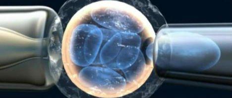 Qual è il Procedimento della Diagnosi genetica preimpianto (DGP)?