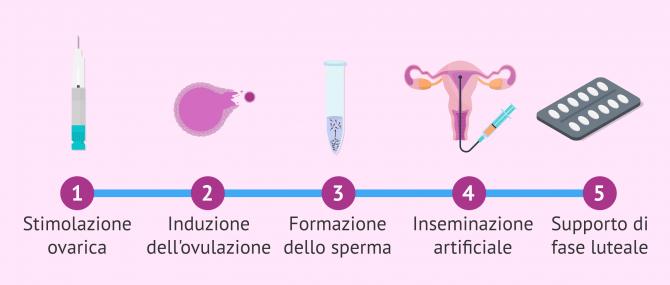 Imagen: Ciclo ovarico stimolato per l'inseminazione artificiale