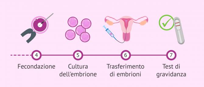 Imagen: Processo FIVET dalla fecondazione in vitro al trasferimento embrionale