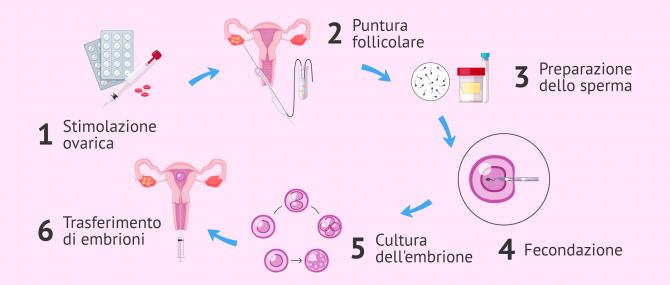 Imagen: Processo di fecondazione in vitro