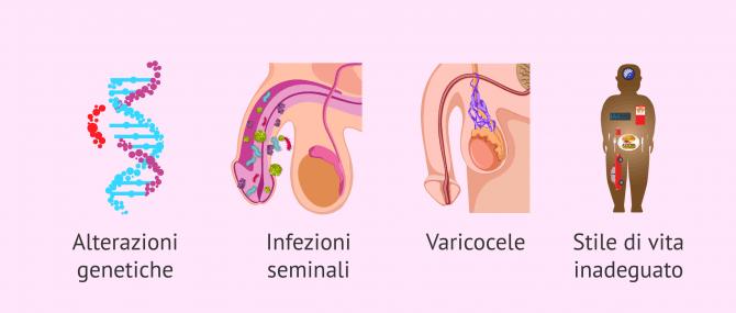 Imagen: Quali fattori causano la teratozoospermia?