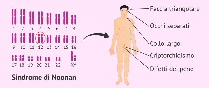 Imagen: Caratteristiche della sindrome di Noonan