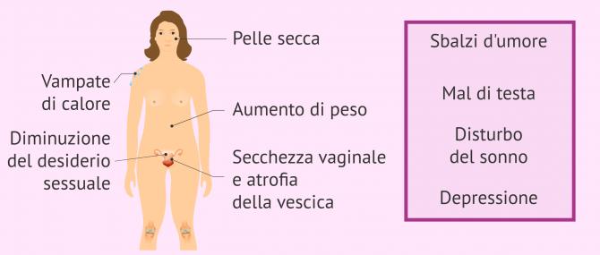 Imagen: Sintomi della menopausa precoce