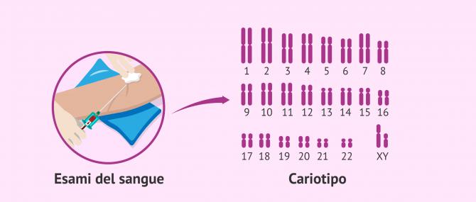 Imagen: Studio del cariotipo negli uomini