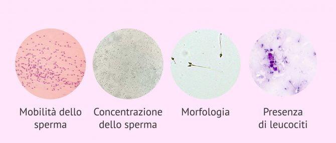 Imagen: Parametri microscopici di analisi dello sperma