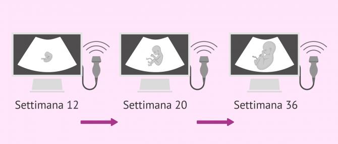Imagen: Ecografie fetali durante la gravidanza