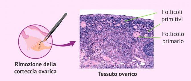 Imagen: Tessuto della corteccia ovarica