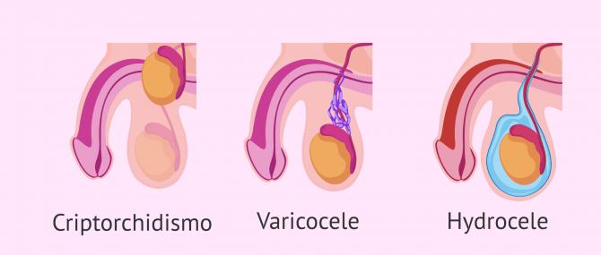 Imagen: Oligospermia dovuta a cause testicolari