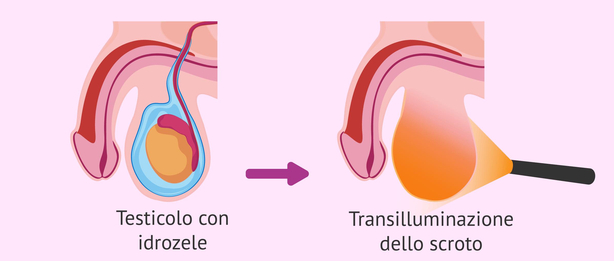Cos'è l'idrocele testicolare? - Cause, sintomi e trattamento