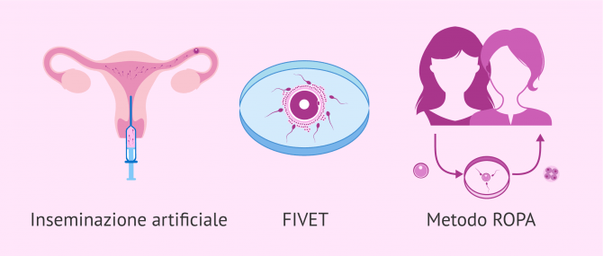 Riproduzione assistita per coppie lesbiche: maternità lesbica