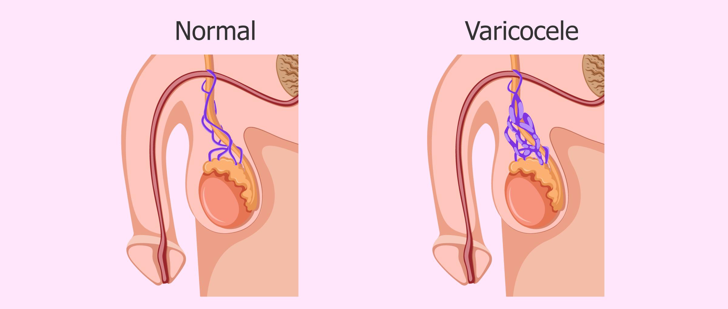 Cos'è il varicocele testicolare? - Cause, sintomi e trattamenti